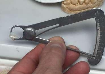 Monolitico in Zirconio HT con spessore ridotto